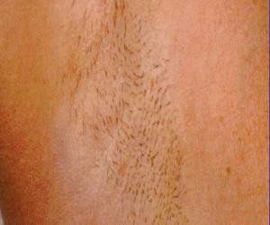 Cynosure-Laser-Hair-Removal-Underarm-1