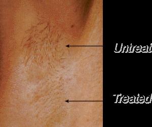 Cynosure-Laser-Hair-Removal-Underarm-2